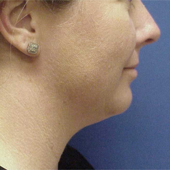 35-44 year old woman treated with Kybella before 3499842