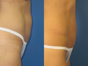 Exilis for skin tightening abdomen 938960