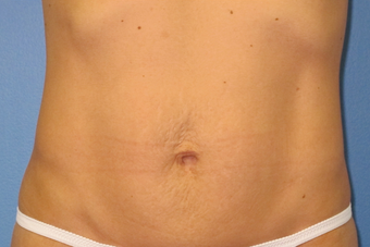 Exilis for skin tightening abdomen