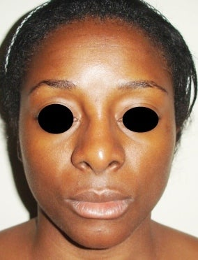 36 year old female treated with open rhinoplasty before 1096623