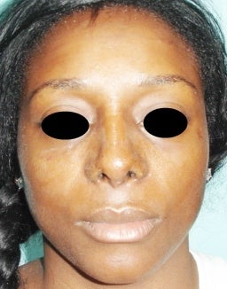 36 year old female treated with open rhinoplasty after 1096623