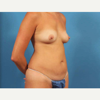 35-44 year old woman treated with Breast Augmentation with Shaped Implants before 3787273