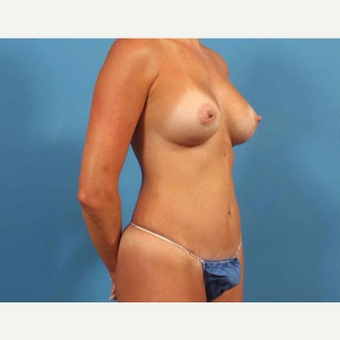 35-44 year old woman treated with Breast Augmentation with Shaped Implants after 3787273