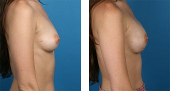 29 Year Old Woman, Cassileth One-Stage Breast Reconstruction after 1039911