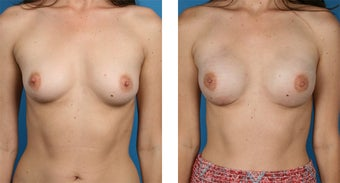 29 Year Old Woman, Cassileth One-Stage Breast Reconstruction before 1039911