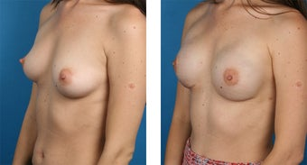 29 Year Old Woman, Cassileth One-Stage Breast Reconstruction 1039911
