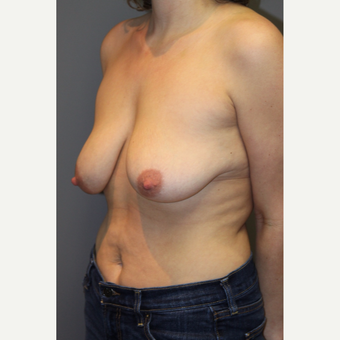 25-34 year old woman treated with Breast Lift before 3129110