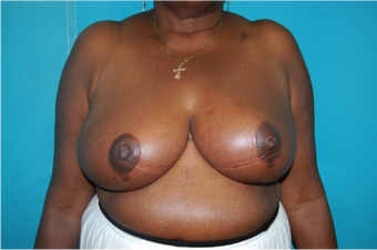 6 Month Post Operative Breast Reduction after 1112387