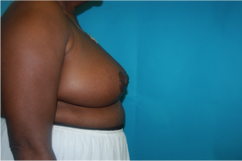 6 Month Post Operative Breast Reduction 1112387