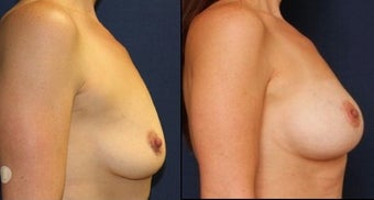 42 year woman breast augmentation and breast lift before 1254239
