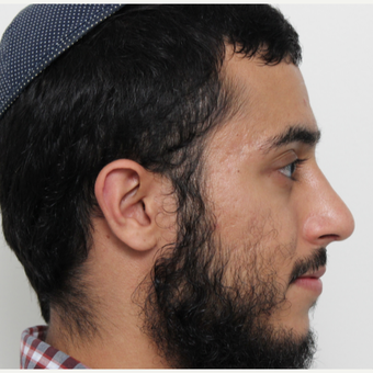 18-24 year old man treated with Rhinoplasty after 3448594
