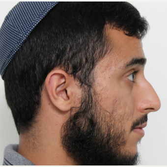 18-24 year old man treated with Rhinoplasty before 3448594