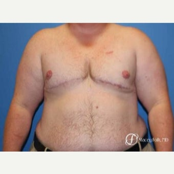 35-44 year old man treated with FTM Chest Masculinization Surgery after 2656070