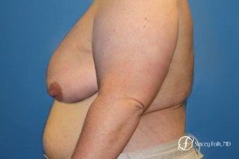 35-44 year old man treated with FTM Chest Masculinization Surgery 2656070