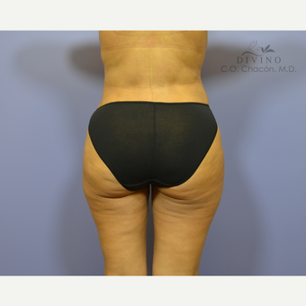 35-44 year old woman treated with Butt Augmentation after 3421223