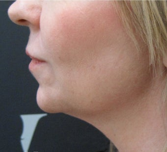 CoolSculpting: Before & After Results for Double Chin after 3297278