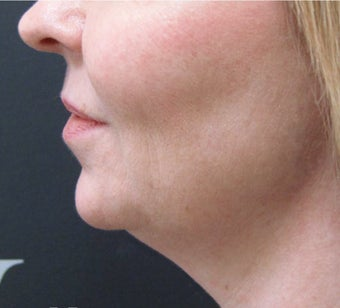 CoolSculpting: Before & After Results for Double Chin before 3297278