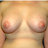 26 year old woman treated with Breast Lift with Implants after 3665965
