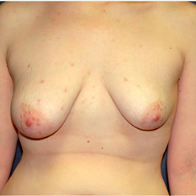 26 year old woman treated with Breast Lift with Implants before 3665965
