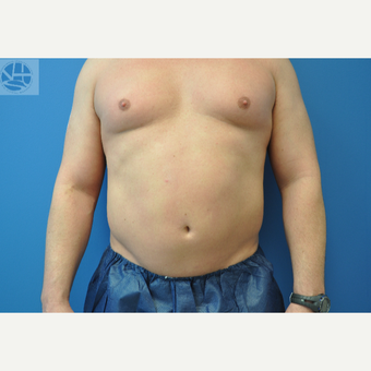 35-44 year old man treated with CoolSculpting after 3650045