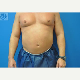 35-44 year old man treated with CoolSculpting before 3650045
