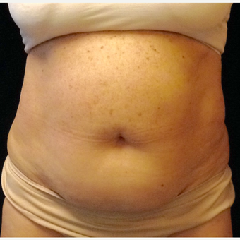 65-74 year old woman treated with Smart Lipo before 3110867
