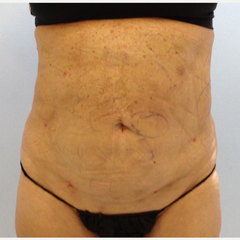 65-74 year old woman treated with Smart Lipo after 3110867