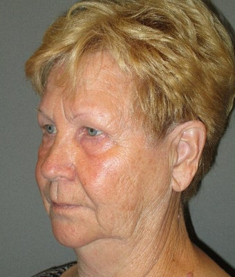 65-74 year old woman treated with SMAS Facelift before 1939084