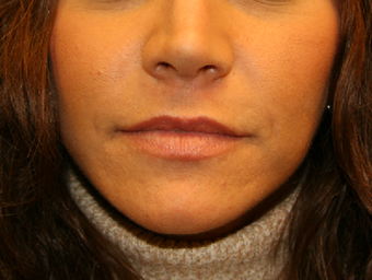Lip lift after 606749