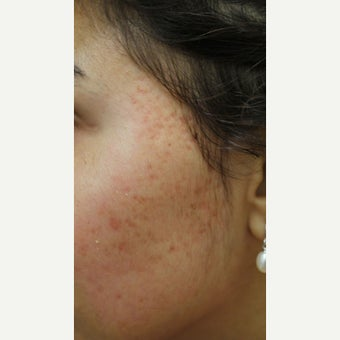 Acne Scars treated with ProFractional Laser before 1918884