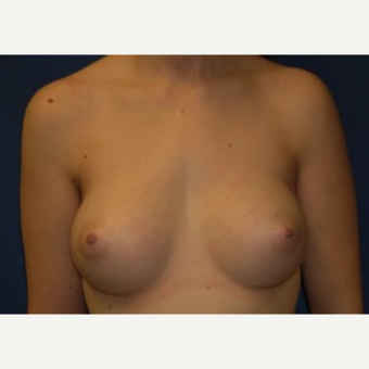18-24 year old woman treated with Breast Augmentation after 3220069