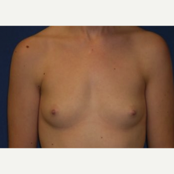 18-24 year old woman treated with Breast Augmentation before 3220069