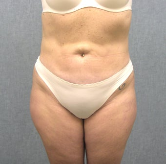 SmartLipo after 607515