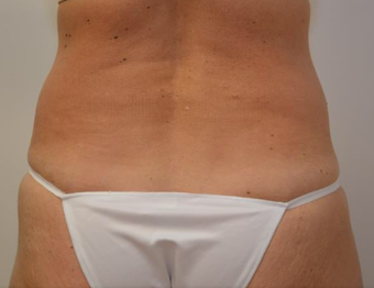 45-54 year old woman treated with CoolSculpting before 2065157