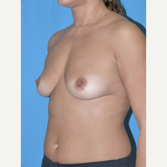 Breast Augmentation before 3807023