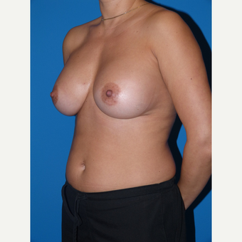 Breast Augmentation after 3807023