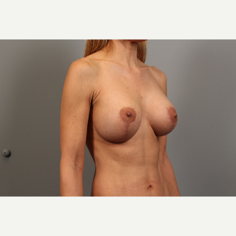 45-54 year old woman treated with Breast Lift with Implants after 2976554