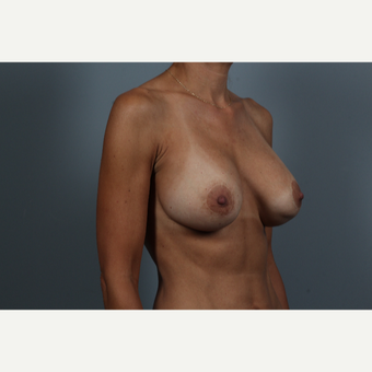 45-54 year old woman treated with Breast Lift with Implants before 2976554