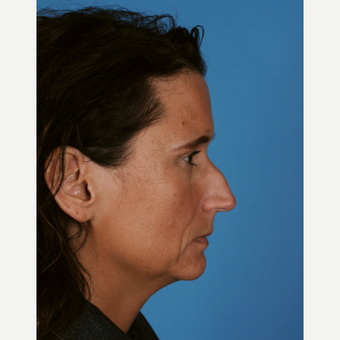 45-54 year old man treated with Rhinoplasty before 3324633