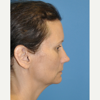 45-54 year old man treated with Rhinoplasty after 3324633