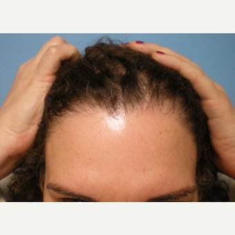 Transgender Hair Transplant to create a Female Hair Line 1575132