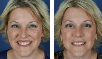 Female Treated For Gummy Smile With Botox before 966253