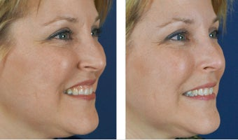 Female Treated For Gummy Smile With Botox 966253