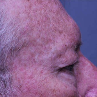 55-64 year old man treated with Eye Bags Treatment before 2739641
