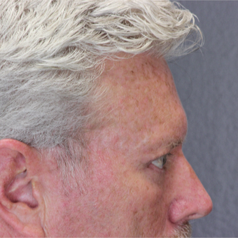 55-64 year old man treated with Eye Bags Treatment after 2739641