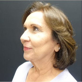 65-74 year old woman treated with SMAS Facelift before 3244965