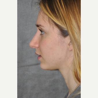 25-34 year old woman treated with Rhinoplasty after 3566083