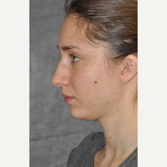 25-34 year old woman treated with Rhinoplasty before 3566083