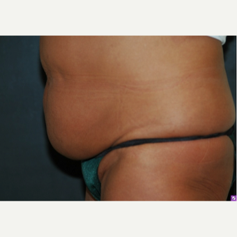 35-44 year old woman treated with Tummy Tuck 1649856