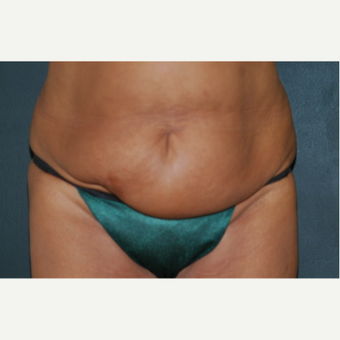 35-44 year old woman treated with Tummy Tuck before 1649856